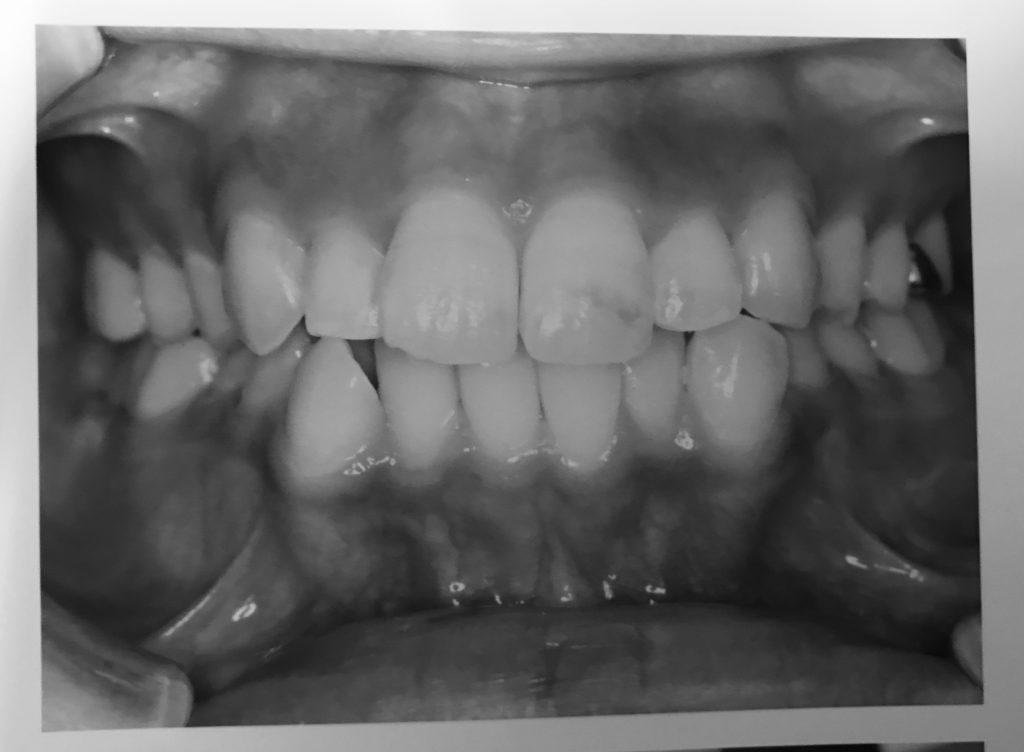 前から見た歯並び